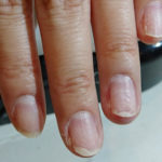 爪のボコボコ親指は危険!?病気の名前や原因、治し方。